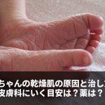 赤ちゃんの乾燥肌。原因と治し方、皮膚科に行く目安は?薬は?